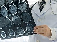 FDA одобрило к использованию израильский алгоритм быстрого выявления внутричерепных кровотечений