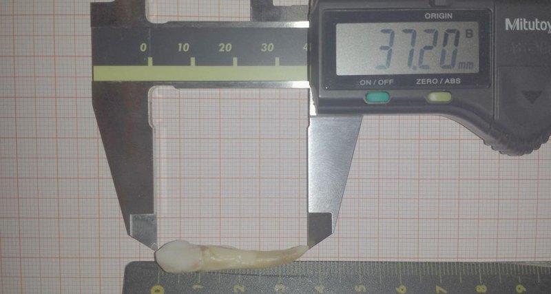 Пациенту удалили рекордный по размерам зуб (фото)