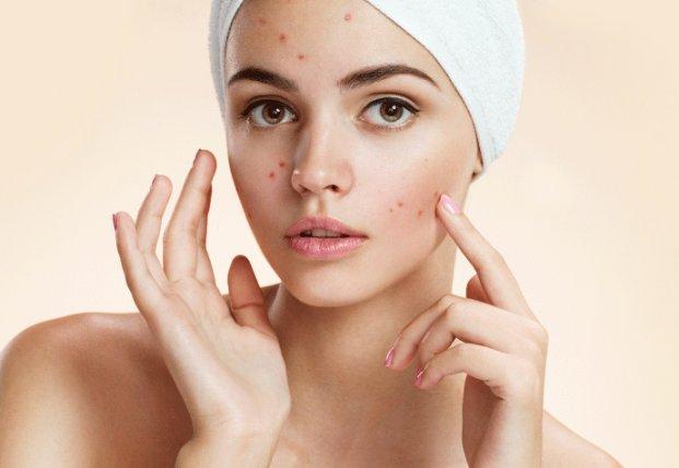 Как избавить кожу от прыщей, когда косметика не помогает