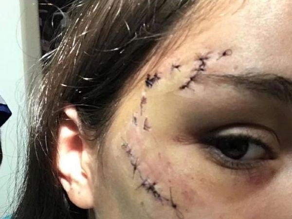 Собака разорвала девушке лицо во время фотосессии (фото)
