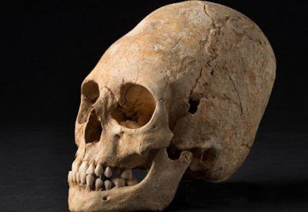 Захоронения с удлиненными черепами нашли на древнем венгерском кладбище