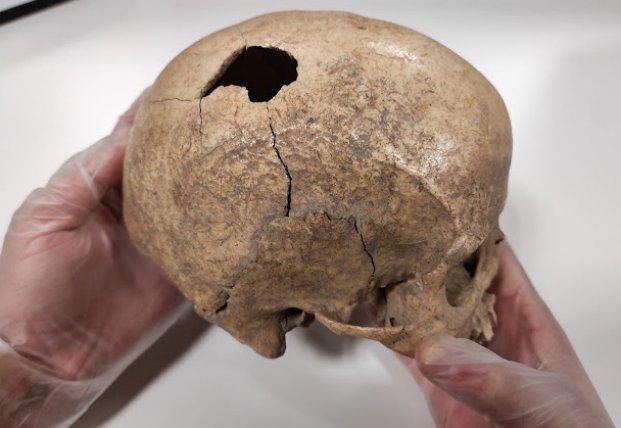 Археологи нашли останки мужчины, жившего 5 тыс. лет назад, и узнали тайну его смерти