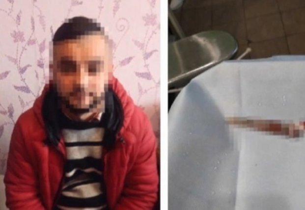 Проткнул глаз ножницами: в Житомире врача подозревают в избиении начальницы (видео)