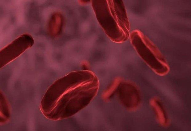 Медики назвали главные симптомы атеросклероза